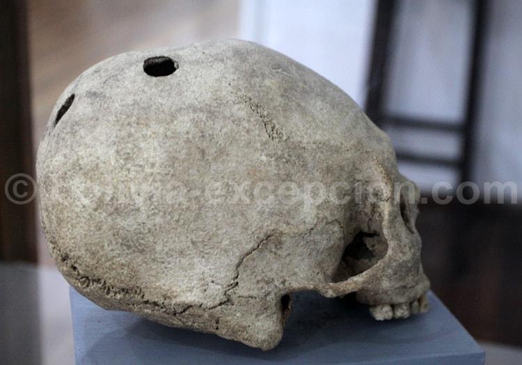 Chullpa Huayco, crâne trépané